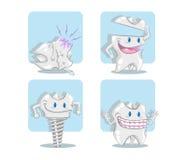 牙植入管、冠、畸齿矫正术和朽烂 免版税库存照片