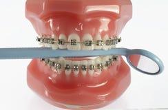 牙模型有拿着牙齿镜子的括号的 免版税库存照片