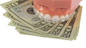 牙模型有清楚的Ceraminc括号和金钱的 库存照片