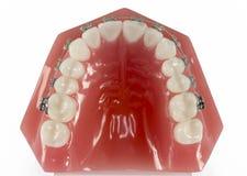 牙模型有从上面观看的括号的 库存照片