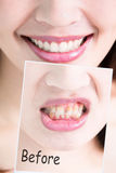 牙漂白概念 库存照片