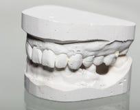 牙牙齿石膏模型模子在膏药的 免版税库存照片