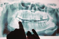 牙的全景X-射线图象 有些牙去除了,问题与牙 免版税图库摄影