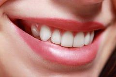暴牙的微笑 库存照片