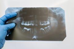 牙的疾病诊断  牙医的手拿着一orthopantomogram 免版税库存图片