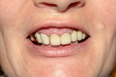牙的腐烂的根的牙齿恢复有陶瓷冠的 被熔铸的岗位牙科 免版税图库摄影