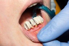 牙的腐烂的根的牙齿恢复有陶瓷冠的 被熔铸的岗位牙科 免版税库存照片