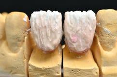 牙种入与特别待遇 免版税库存图片