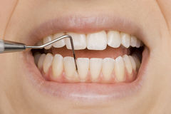 牙科医生 库存图片