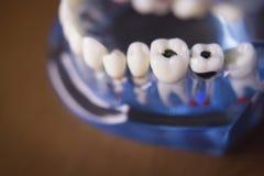牙科学生的假牙 库存图片