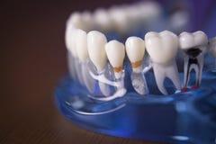 牙科学生的假牙 库存照片