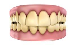 牙被隔绝的被设置的黄色 库存图片