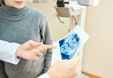 牙计算机控制X线断层扫描术  免版税库存照片
