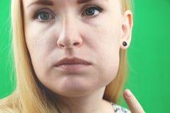 牙问题 Gumboil,涨潮和胀大面颊 遭受强的牙痛的美丽的哀伤的女孩特写镜头  有吸引力的 图库摄影