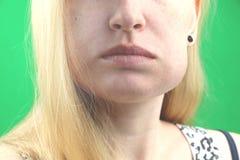 牙问题 Gumboil,涨潮和胀大面颊 遭受强的牙痛的美丽的哀伤的女孩特写镜头  有吸引力的 库存照片