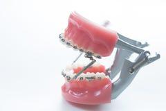 牙齿下颌托架支撑在白色的模型 库存图片