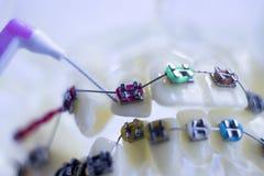 牙齿之间牙托架清洗 库存图片
