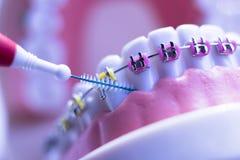 牙齿之间牙托架清洗 免版税库存图片