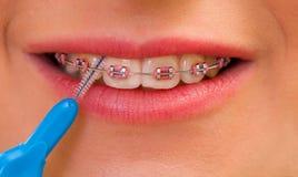 牙齿之间掠过 免版税库存照片