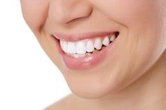 牙齿保护妇女 库存图片