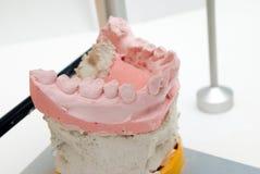 牙齿假牙仪器 免版税库存图片