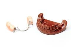 牙齿假牙模子膏药 库存照片