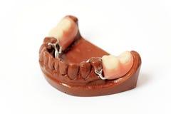 牙齿假牙模子膏药 免版税库存图片