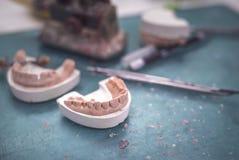 牙齿假肢工作设备 图库摄影