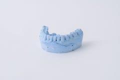 牙齿假肢模子 库存图片