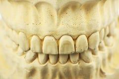 牙齿假肢的牙齿模子 免版税图库摄影