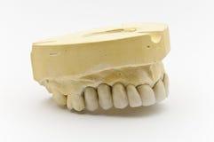 牙齿假肢 免版税库存照片