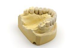 牙齿假肢 免版税图库摄影