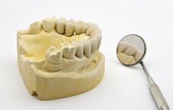 牙齿假肢 库存图片