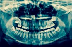 牙齿光芒x 一张嘴的一个全景X-射线,与原封智慧t 库存图片