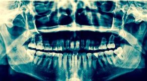 牙齿光芒x 一张嘴的一个全景X-射线,与原封智慧t 免版税库存照片