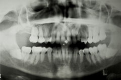 牙齿光芒x 免版税库存照片