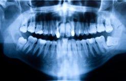 牙齿光芒x 库存照片