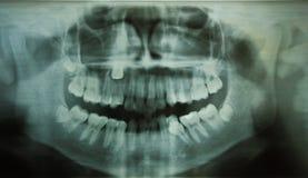 牙齿光芒x X-射线 免版税库存图片