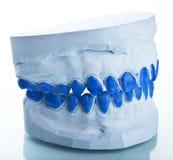 牙齿单个做模子膏药到盘 图库摄影