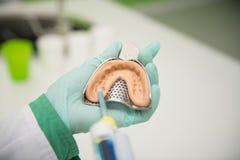 牙齿印象特写镜头射击与植入管的 免版税库存照片