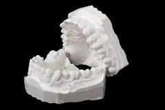 牙齿印象白垩模型 免版税库存图片