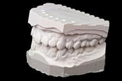牙齿印象白垩模型 免版税库存照片
