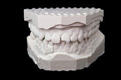 牙齿印象白垩模型 库存照片