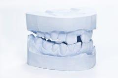 牙齿印象 图库摄影