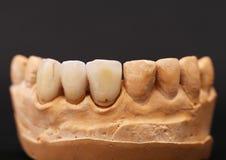 牙齿印象 库存图片
