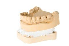 牙齿印象 免版税库存图片