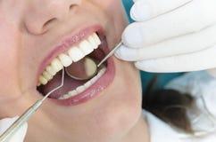 牙齿咨询 免版税库存图片