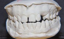 牙齿塑象 免版税库存图片