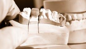 牙齿工作 免版税库存照片
