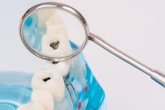 牙齿工具和牙或者牙齿模型 库存照片
